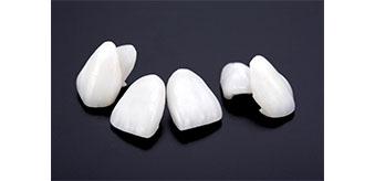 可能な限り「白い歯」で対応します