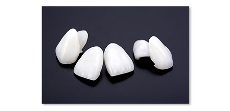 可能な限り白い歯で対応